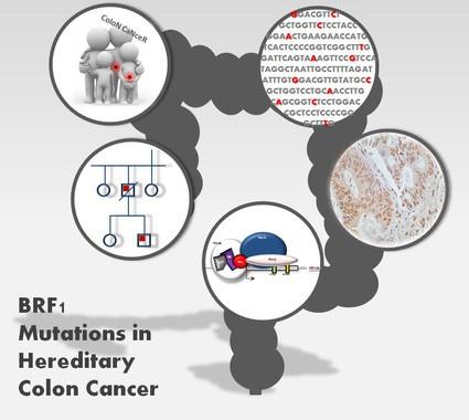 marcadores de cáncer de colon